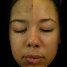 What Causes Hyperpigmentation?