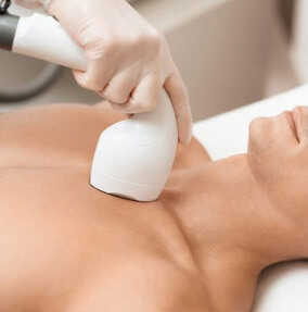 What Does Laser Hair Removal Consist of?